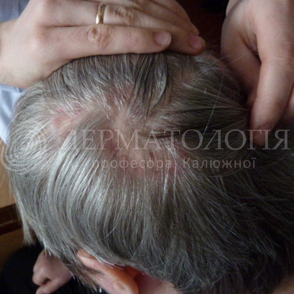 rubcovaya-alopeciya2